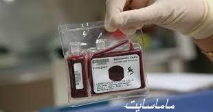 خون بند ناف چیست