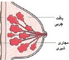 تمام توده های پستان سرطان پستان نیستند